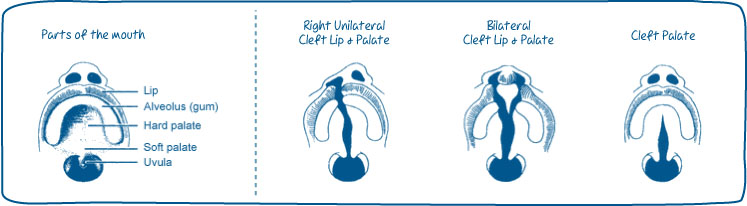 A cleft lip can be on one side